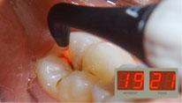 治療が行われている歯