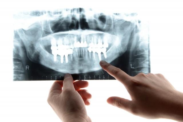 歯のレントゲンを指差して説明しています